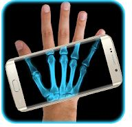 Best X Ray Apps Android
