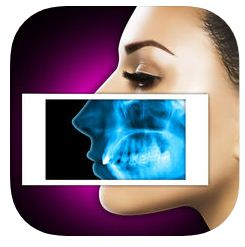 Best X Ray Apps iPhone